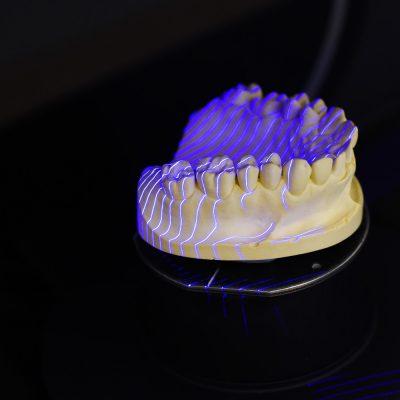 Laborator de Tehnica dentara, tehnicieni dentari Timisoara - Green Dental Lab